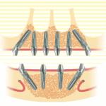 tum-cene-implant-300x271